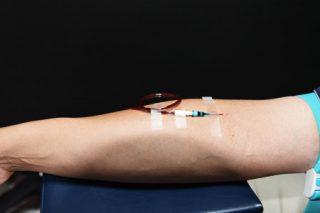 血液オゾン療法_01